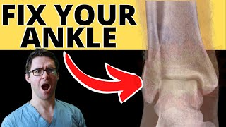 BEST Ankle Fracture & Broken Ankle Recovery Time 2021 [25 BEST TIPS!]