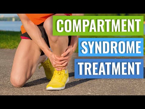 Lower Leg Compartment Syndrome Treatment - Running Modifications