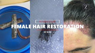 FUT or FUE | Female Hair Restoration | Dr. Michelle Elway Ziering Medical