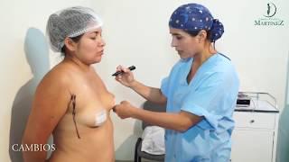 cambios-aumento-de-mamas-y-abdominoplastia-ciruga-plstica-martinez