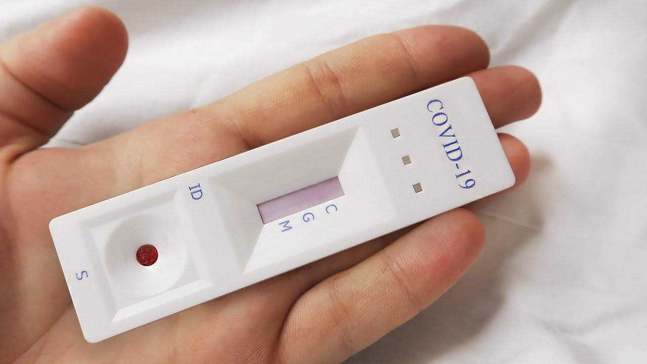 Я сделал тест на коронавирус (COVID-19)