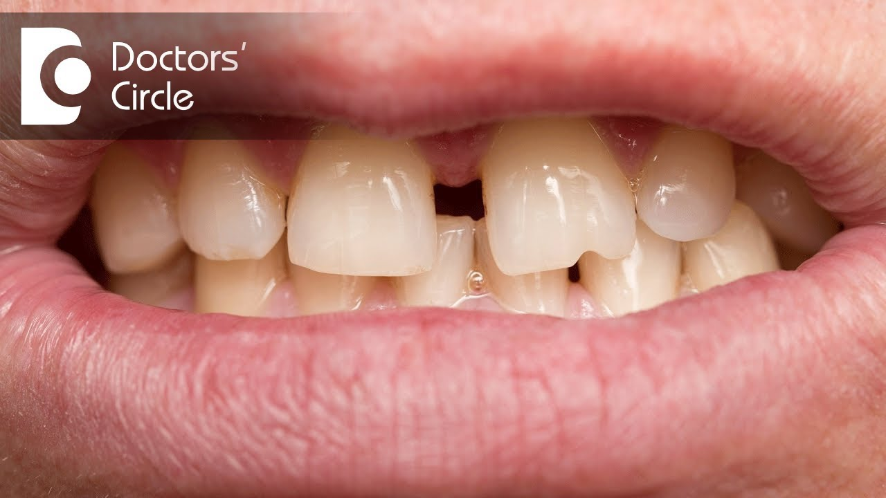 Can crooked teeth correct themselves over time? - Dr ...