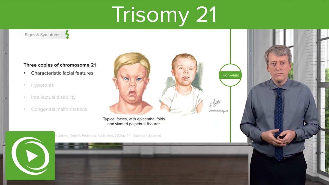 Trisomy 21 (Down Syndrome): Introduction – Pediatrics | Lecturio
