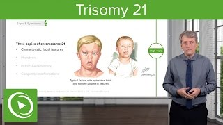 Trisomy 21 (Down Syndrome): Introduction – Pediatrics | Lecturio