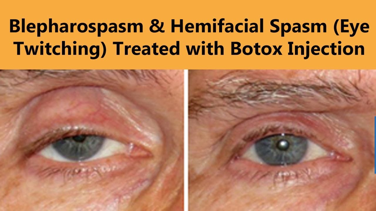 Why does the upper eyelid twitch Causes and Treatment