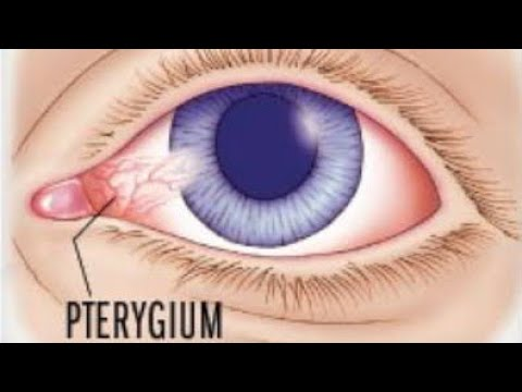 Pterygium || what is pterygium || treatment and surgery options ||
