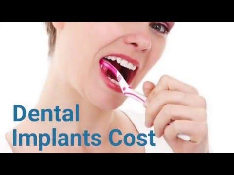 Dental Implant Costs Boston - Affordable Dental Implants Boston