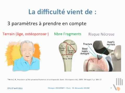 Fracture de l'épaule : Fracture de la tête de l'Humérus, synthèse ou prothèse