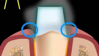 wie sollte ein Zahn nicht beschliffen werden - Tangentialbeschliff