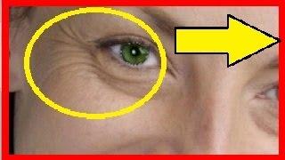 Video Como eliminar arrugas de los ojos download MP3, 3GP, MP4, WEBM, AVI, FLV Juli 2018