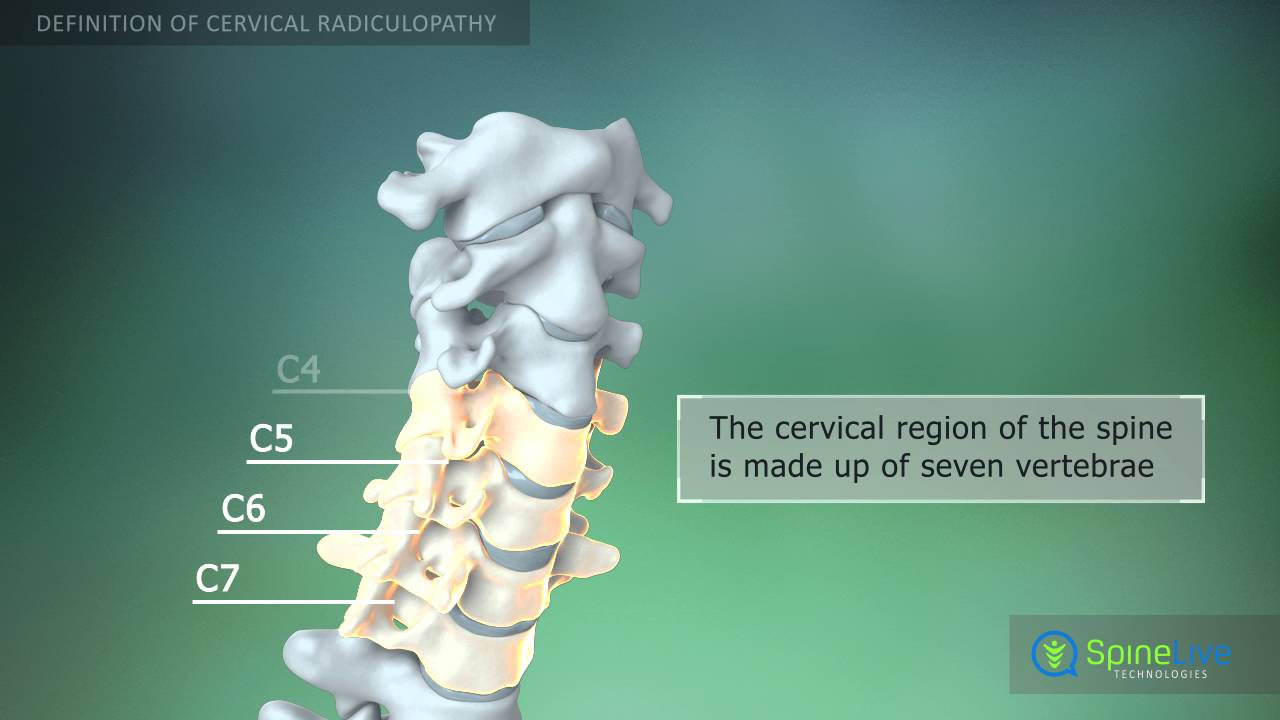 Cervical Radiculopathy Definition Youtube
