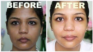 Homemade Vitamin C Cream For Skin FAirness/Skin Whiting - Get Rid of Dark Skin