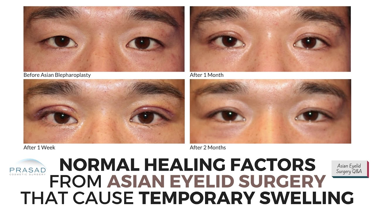 Eyelid surgery for asian
