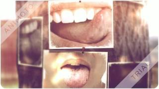 Little white bumps on tongue