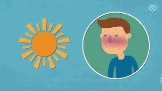 Стоп аллергия(Аллергия не дает спокойно жить? Страдаете от аллергии на животных, аллергии на цветение или от других видов..., 2016-04-25T13:00:58.000Z)