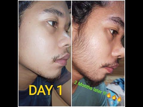 My Minoxidil journey | week 1 to week 8 2 months progress!!! (Asian)