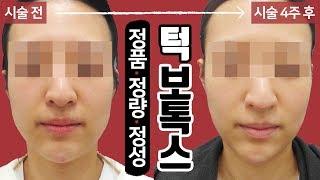 턱보톡스 시술 영상 톡스앤필 송파점