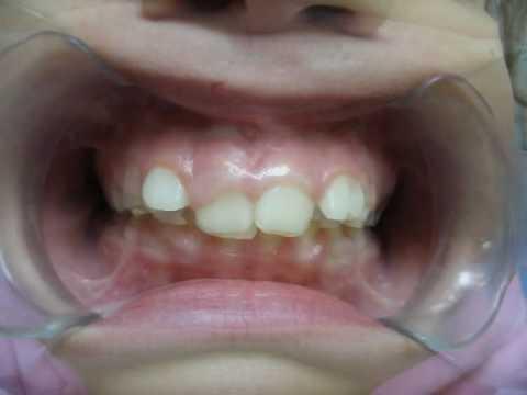 Как Исправить Прикус и Сделать Зубы Ровными? Способы Выравнивания .