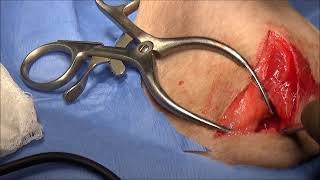 Femoral Head and Neck Excision