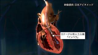 beyond ~掴め!未来のチカラ~ 第2回「バイオ・メディカル」