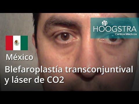 Blefaroplastía transconjuntival y láser de CO2 - Fire-Xel (16052)