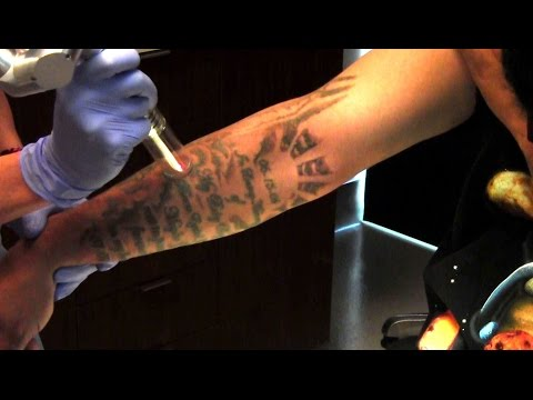 Tattoo Removal Demonstration | Palm Desert | Palm Springs