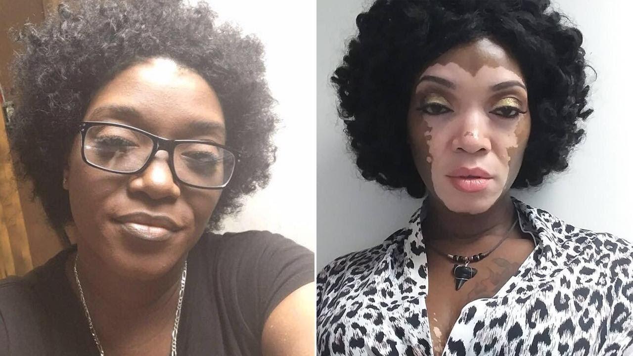 Woman Embraces Her Vitiligo After 30 Years Of Hiding Under Makeup Youtube