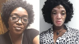 Woman Embraces Her Vitiligo After 30 Years of Hiding Under Makeup