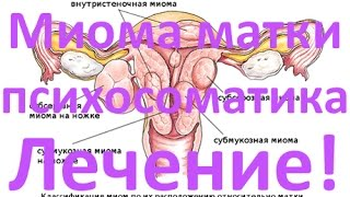 Миома матки - причини, симптомы и лечение