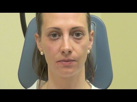10 Minute Nonsurgical Treatment of Eyelid Bags and Tear Troughs