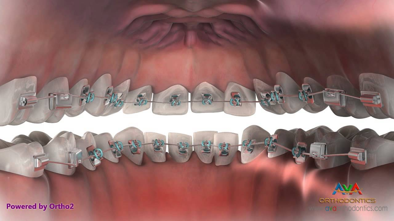 Braces Off Quotes Lingual Braces Hidden Braces  Orthodontic Treatment  Youtube