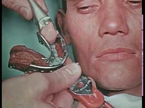 Construction of a Partial Maxillary/Mandibular Denture [silent] (1964)
