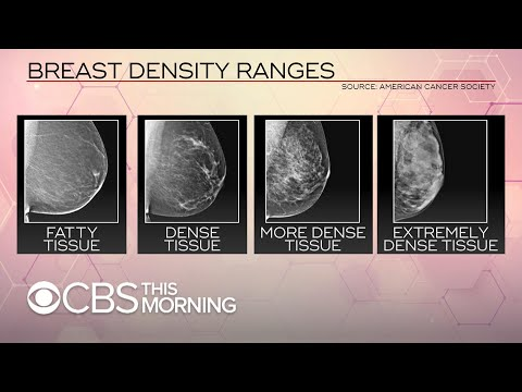 FDA proposes changes to breast cancer screening