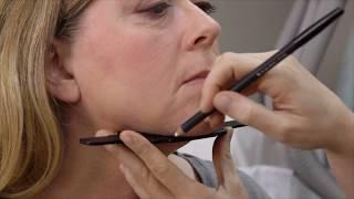 SculpSure - Lipólise não-invasiva para tratamento de gordura submental.