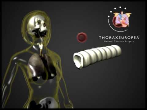 Trachea Trasplant 3D animation