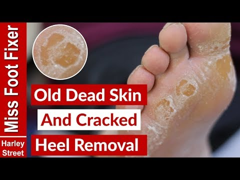 OLD DRY SKIN AND CRACKED HEEL REMOVAL BY MISS FOOT FIXER