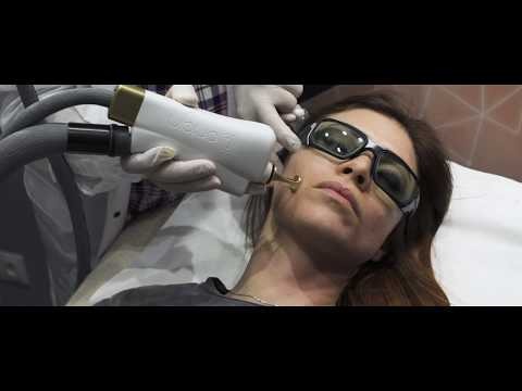 ORIGIN - Le Nouveau Traitement Laser Sur-mesure Par Dr SARFATI