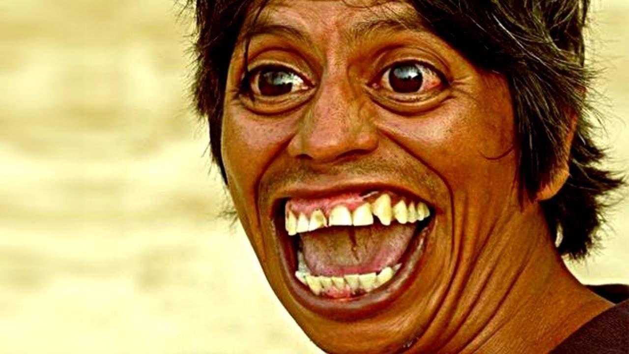 10 حقائق علمية لا تعرفها عن الضحك