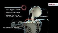 best chiropractor Molino FL