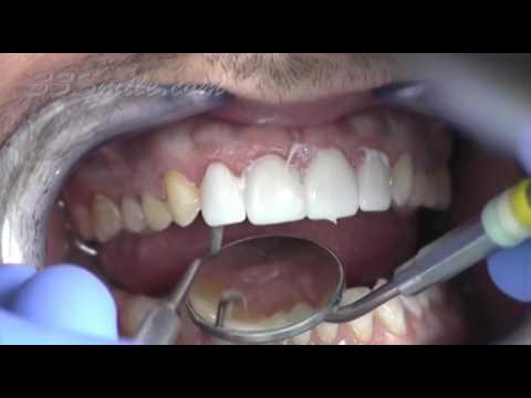 Prepless Veneers Procedure from Cosmetic Dental Associates in San Antonio, TX