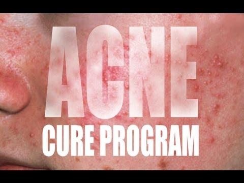 hqdefault - The Acne Cure E-tutorial