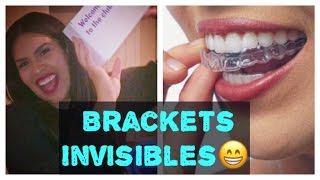 ORTODONCIA INVISIBLE  ♥    BRACKETS / BRACES EN CASA  ♥    Smile Direct Club  ♥    ARIS