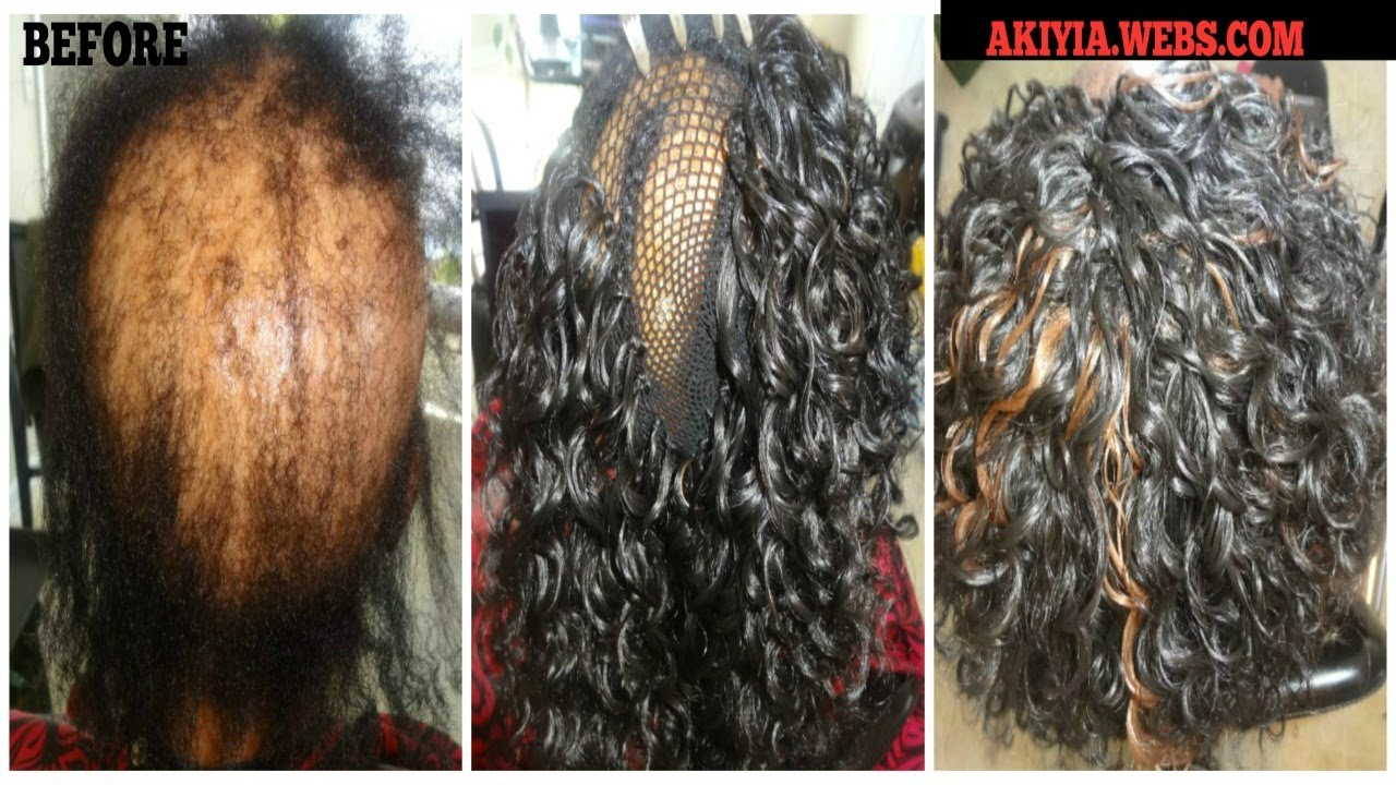 alopecia and crochet braids | freetress go go curl
