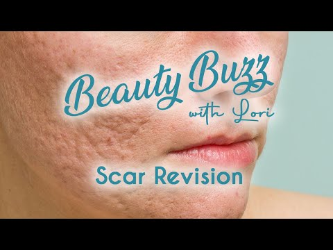Beauty Buzz with Lori: Scar Revision