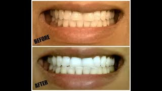 How To Whiten Teeth at Home Safe - SIMPLE | PART 2
