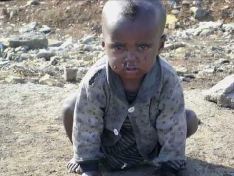 The Suffering Children of Gondar