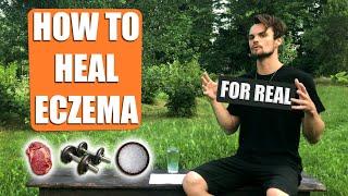 How I healed my ECZEMA naturally / with FOOD, MOVEMENT & HABITS (Rob Stuart)