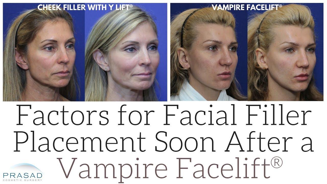 vampire facelift prijs