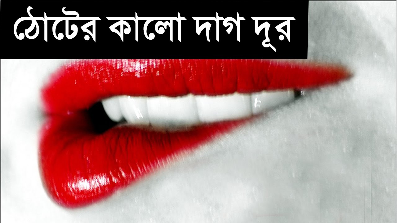 Top 5 natural ways to remove dark spots on Lips | Bengali