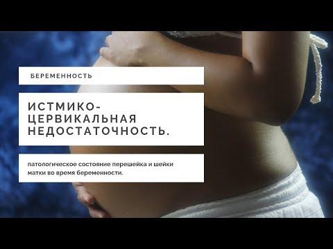 Причины Невынашивания Беременности | Истмико-Цервикальная Недостаточность